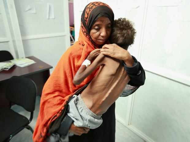 hodeidah-yemen starvation